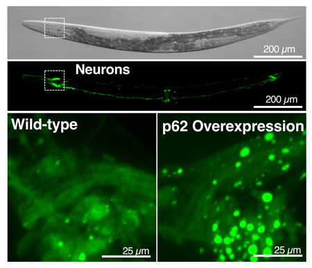 "Surprisingly large ""recycling plants,"" or vesicles (bright green circles shown in the lower right image), appeared in worms that produce excess levels of the p62 protein, akin to a ""cellular recycling truck."" These worms lived a week longer than worms with normal levels of p62 equivalent to a 20 to 30% lifespan extension."