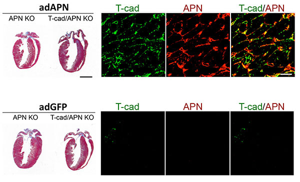T-cadherin requirement in reverting exaggerated cardiac hypertrophy in APN-KO mice