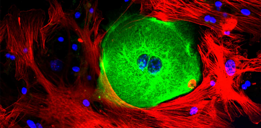 A cancer cell (green) surrounded by structure-supporting stroma cells (red). DNA shown in blue.